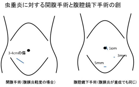 右 左 どっち 盲腸