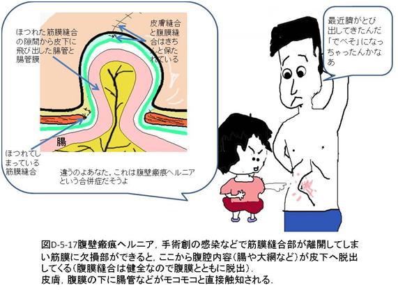 開腹手術による合併症