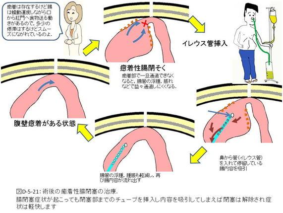 症状 腸閉塞