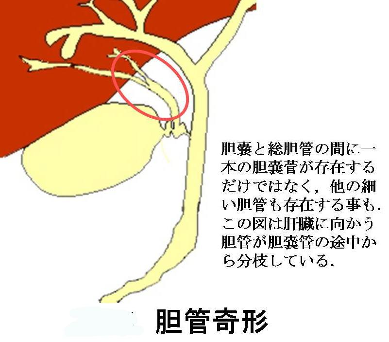 症候群 胆嚢 摘出 後